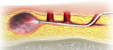 Θεραπεία κύστης κόκκυγος με laser